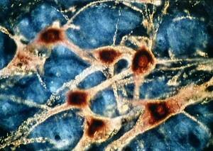 neurones1181315754.1182857884